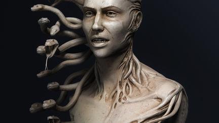I-Medusa